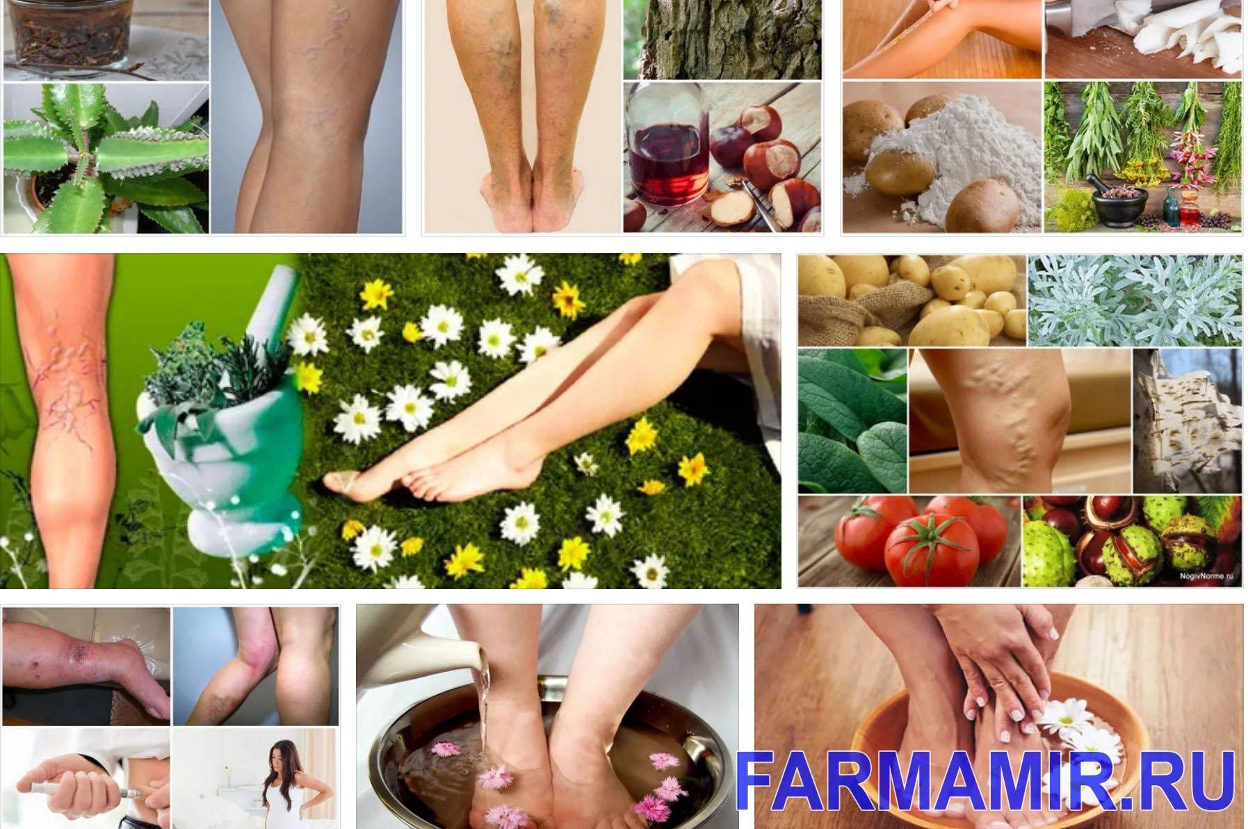 Эффективное лечение варикоза на ногах народными средствами в домашних условиях