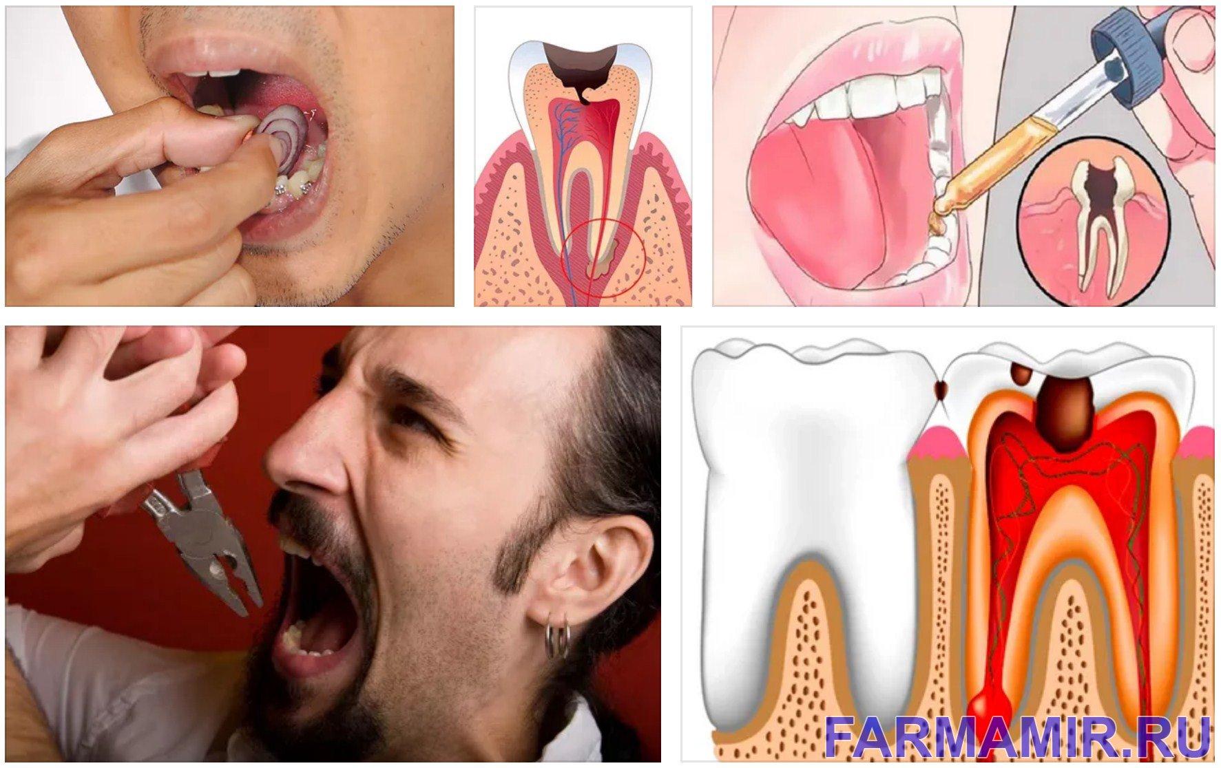 Болит зуб что делать как помочь полезные советы рецепты лекарства отзывы