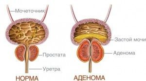prostatadenoma
