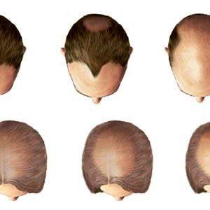 Остановите выпадение волос