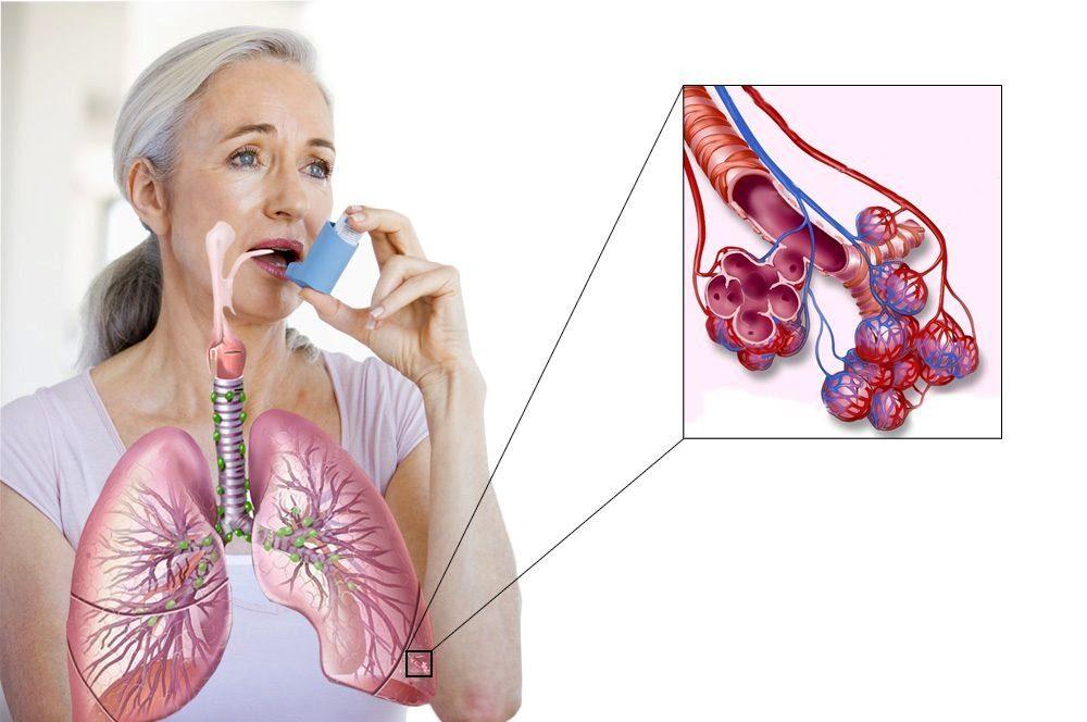 астма лечение