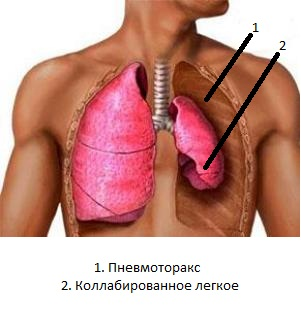 спонтанный пневмоторекс