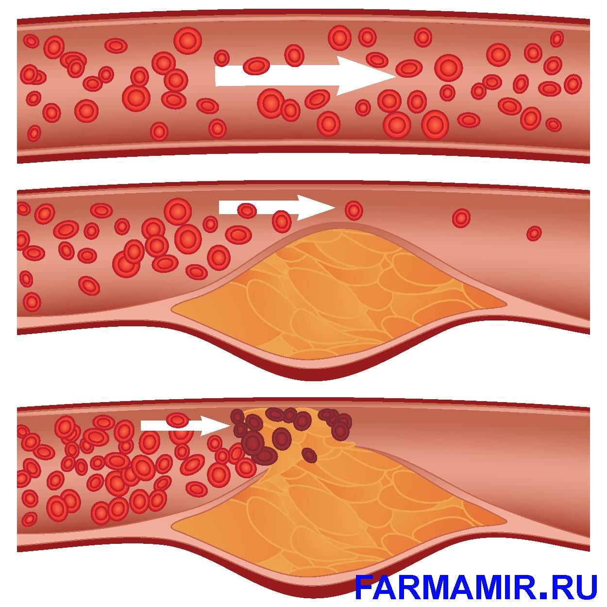атеросклероз коронарных артерий.