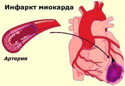 infarkt_miokarda