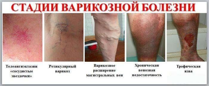 varikoz-stadii