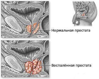 лечение-острого-и-хронического-простатитов-различается