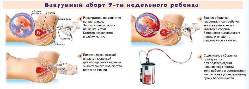 abort9