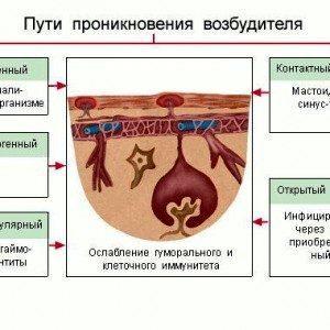 Менингит: этиология, патогенез, симптомы, диагностика, клиника, лечение