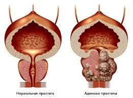 Аденома варшавский гомеопатия производственные