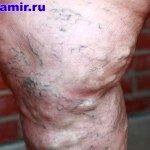 Варикозное расширение вен нижних конечностей (варикоз ног)