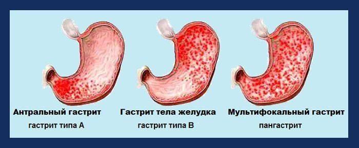 gastrit-s-povyshennoj-kislotnostyu2