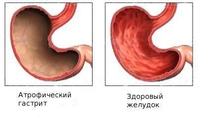 gastrit-simptomy