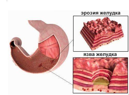 изменения в желудке