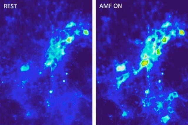 наночаститцы и нервные клетки