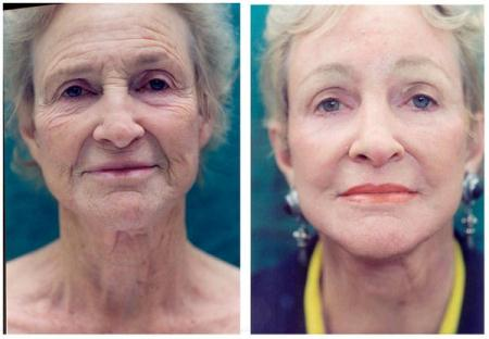 facelifting-woman