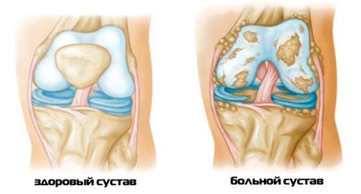 Реактивный артрит причины симптомы диагностика и лечение