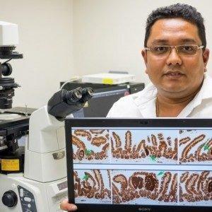 Новая методика лечения рака толстого кишечника