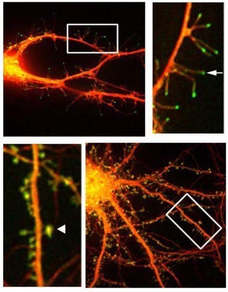 флюоресцентная микрофотография нейронов