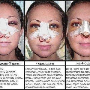 Пластика носа (ринопластика, септопластика)