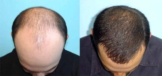 Как лечить волос после окраски