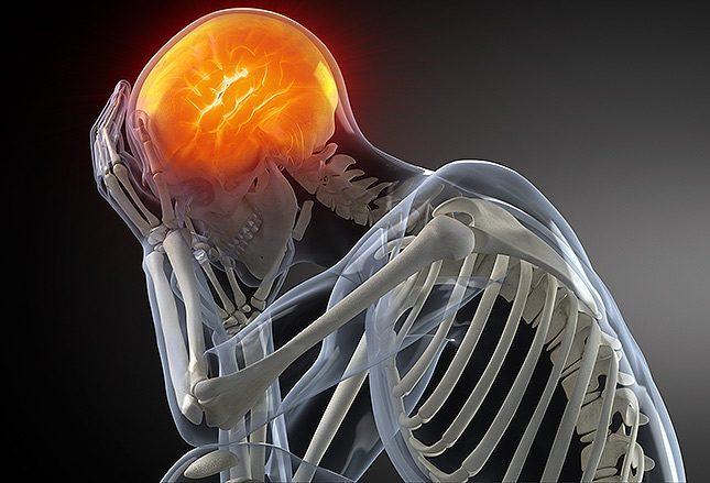 Интраназальная блокада клиновидно-небного ганглия уменьшает хроническую мигрень