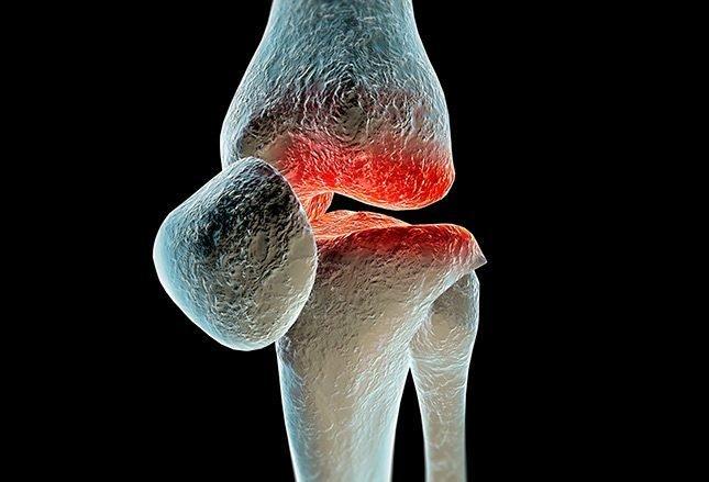 Кеторолак аналогичен кортикостероидам в лечении остеоартрита колена