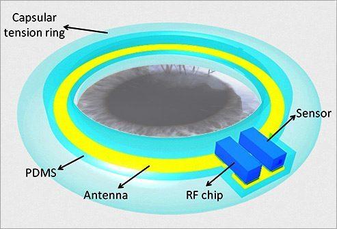 Имплантат для измерения внутриглазного давления