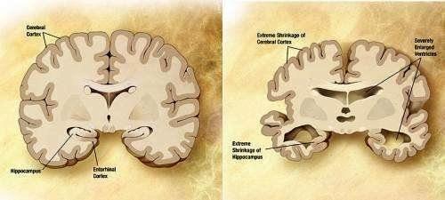 Схема мозга человека с болезнью Альцгеймера