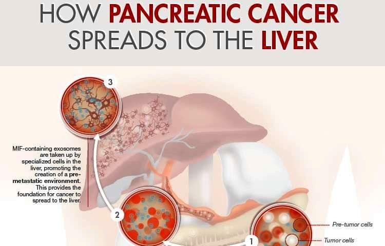 молекулярные шаги рака