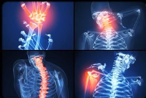 1337176330_petrushki.net_revmatoidnyy-artrit-diagnoz-lechenie-i-simptomy-artrita