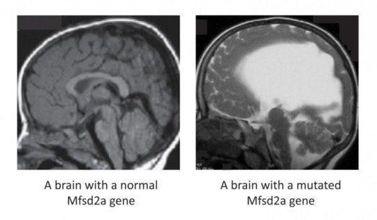 Разница между головным мозгом
