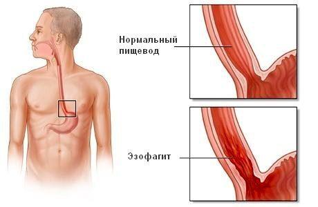 Эзофагит – воспаление пищевода
