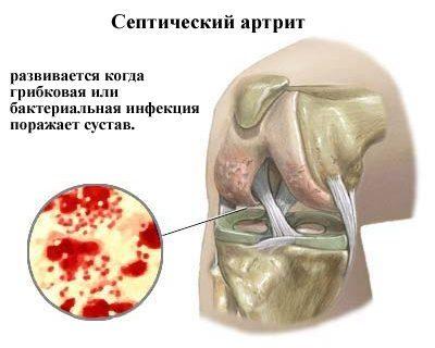 Септический артрит человека симптомы диагностика и лечение