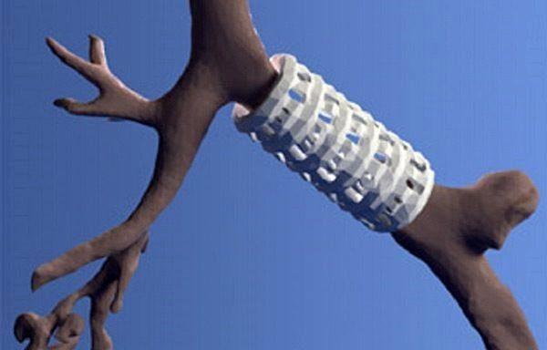 3D-напечатанный имплантат