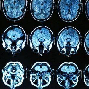 Обнаружен новый механизм начала болезни Альцгеймера
