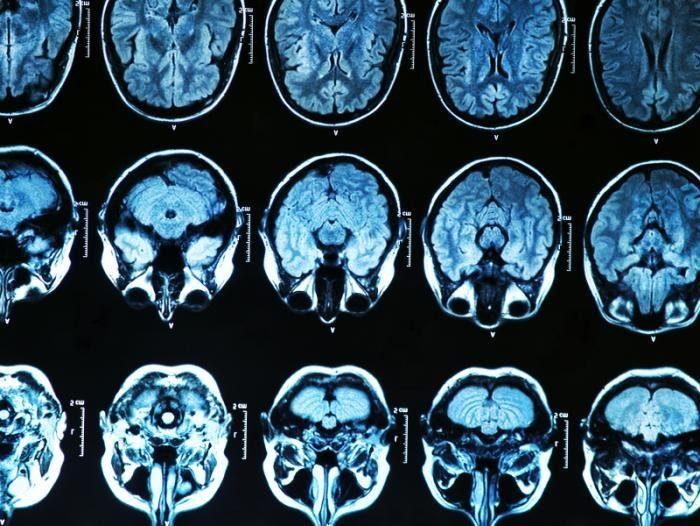 скан мозга