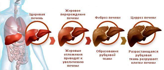 cirroz- pecheni-simptomi