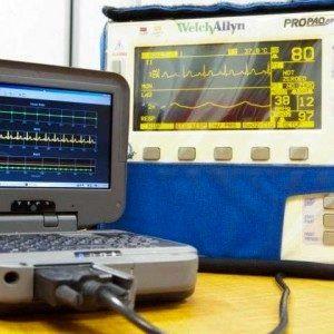 Компьютеризованный анализ жизненных признаков может помочь предотвратить смертельное кровотечение у пациентов с травмами
