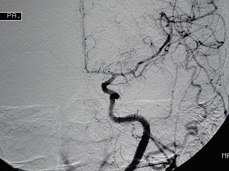 SWIFT PRIME: «впечатляющие» результаты использования стент-ретривера при ишемическом инсульте