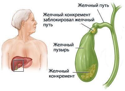Желчекаменная болезнь причины