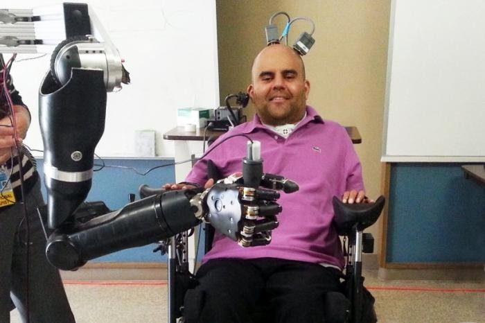 Благодаря нейропротезному устройству, Сорта может управлять роботизированной рукой при помощи своих мыслей