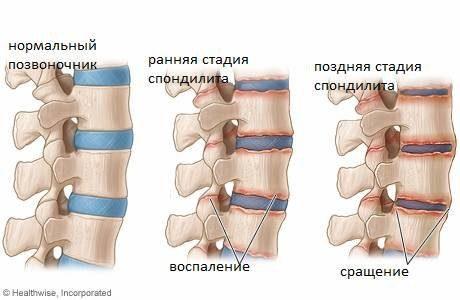 симптомы Спондилит