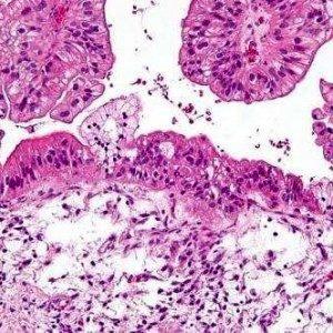 Маркеры, специфические для рака яичников, могут быть использованы для его ранней диагностики и индивидуального лечения