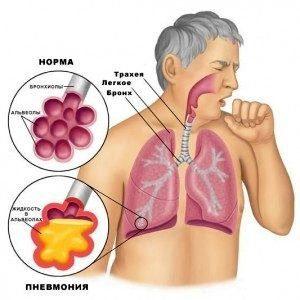 Можно ли самому диагностировать и лечить пневмонию?