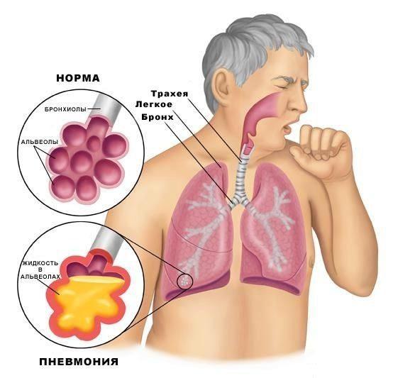 pnevmonija