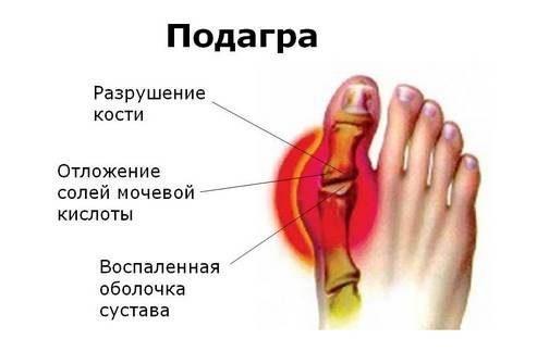 podagra-bolshogo-paltsa-nogi