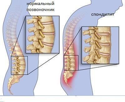 spondilit-pozvonochnika
