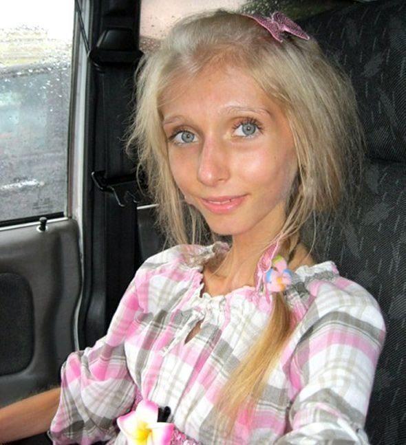Девушка больная анорексией