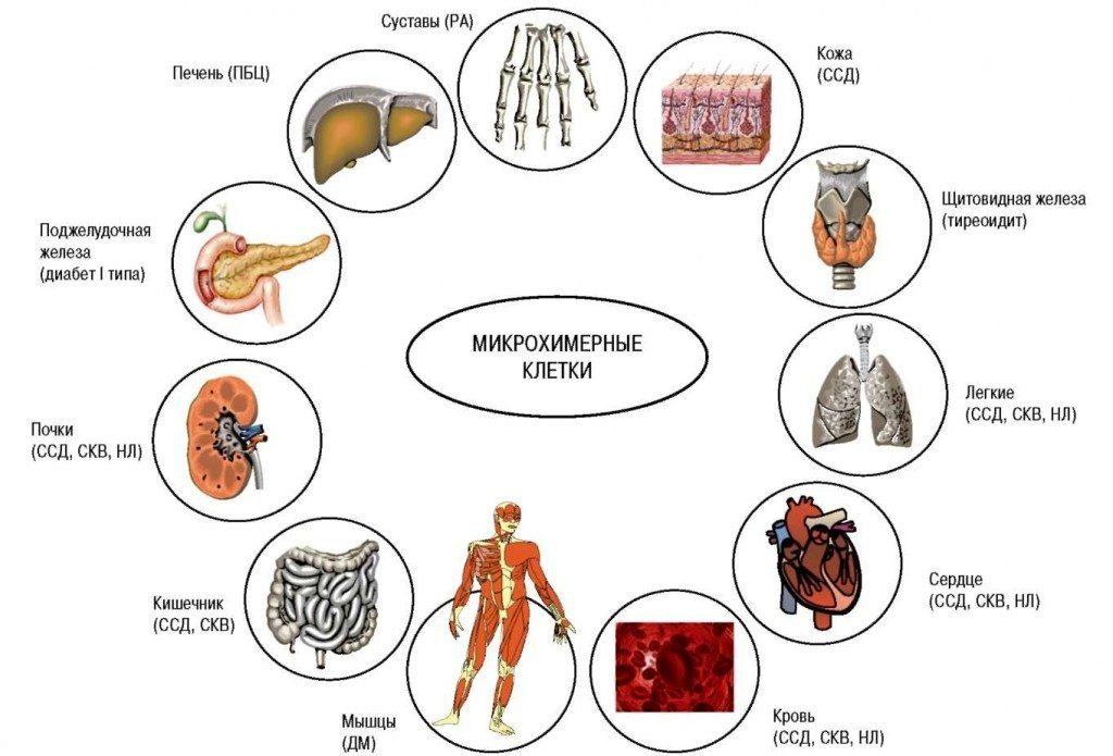 Внесуставные проявления при ревматоидном артрите