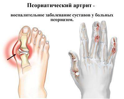 воспаление суставов, именуемое псориатическим артритом